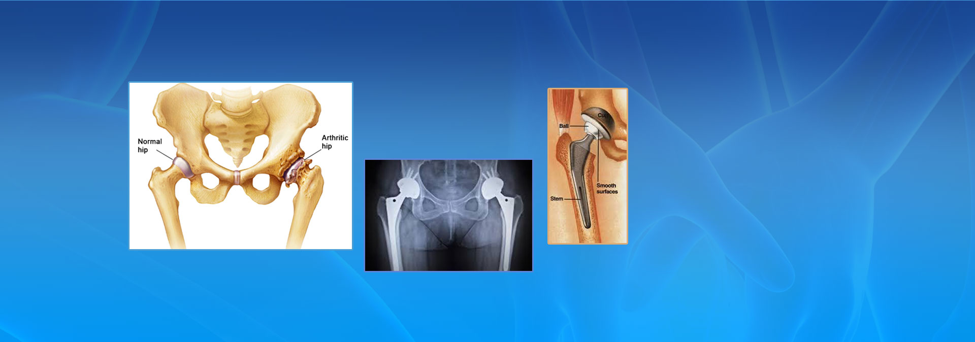 total hip replacement image