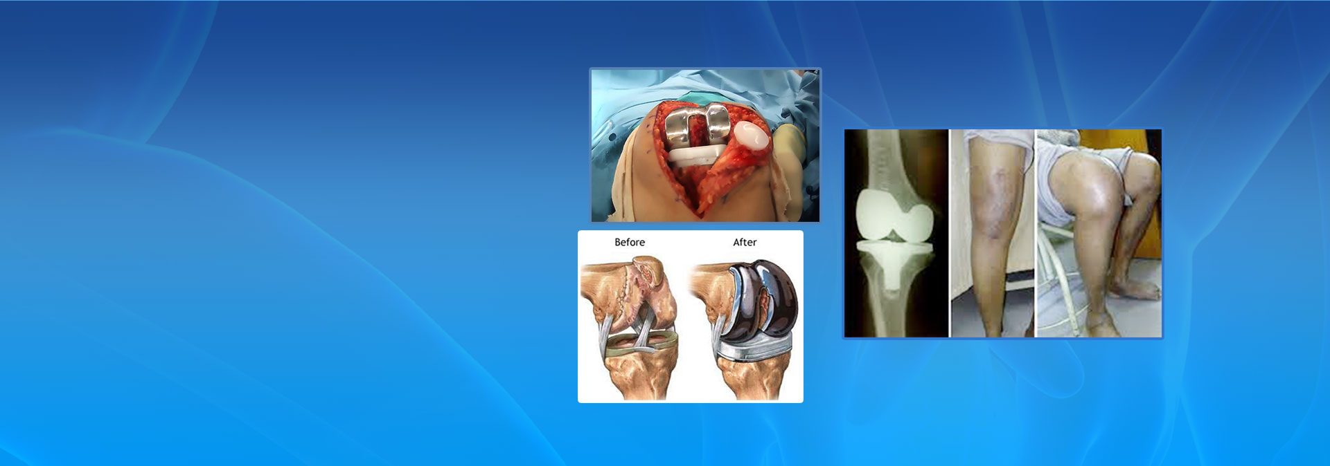 knee replacement image